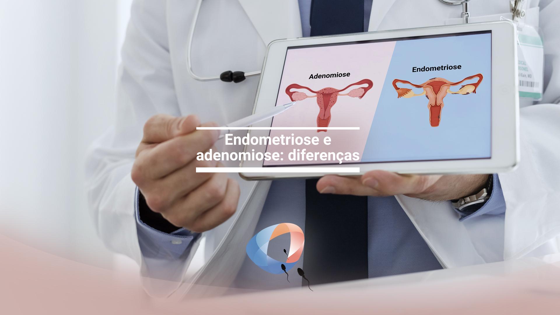 Endometriose e adenomiose: diferenças
